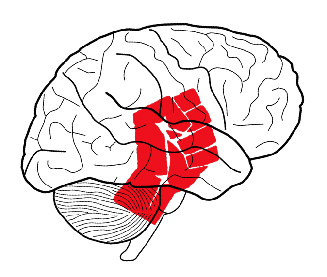 The figure depicts the rage circuitry in the hypothamalus - several nuclei close to the center of the brain (stylized)